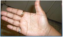 RIGHT HAND -5